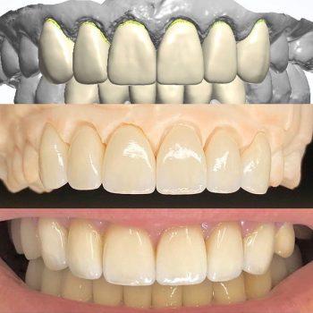 nuart-digital-teeth-design-homepage